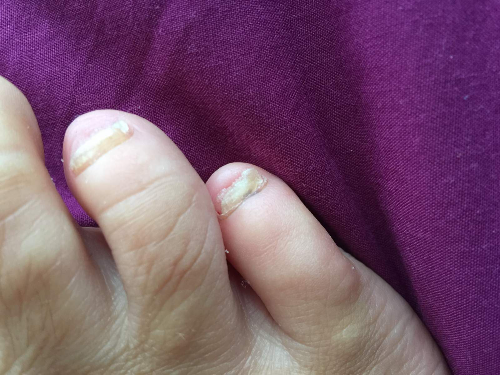 canespro fungal nail treatment before after photos