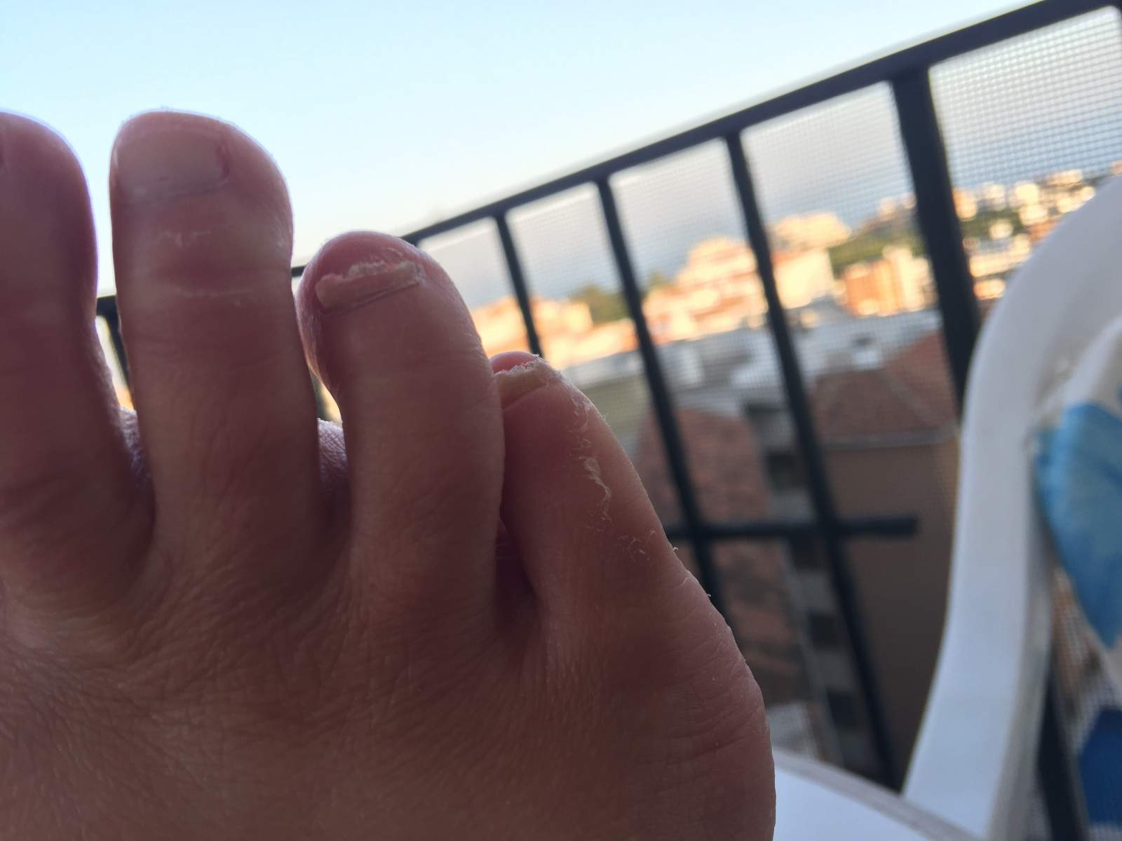 fungal nail treatment day 0